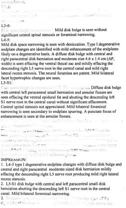 GWAPR- MRI Results
